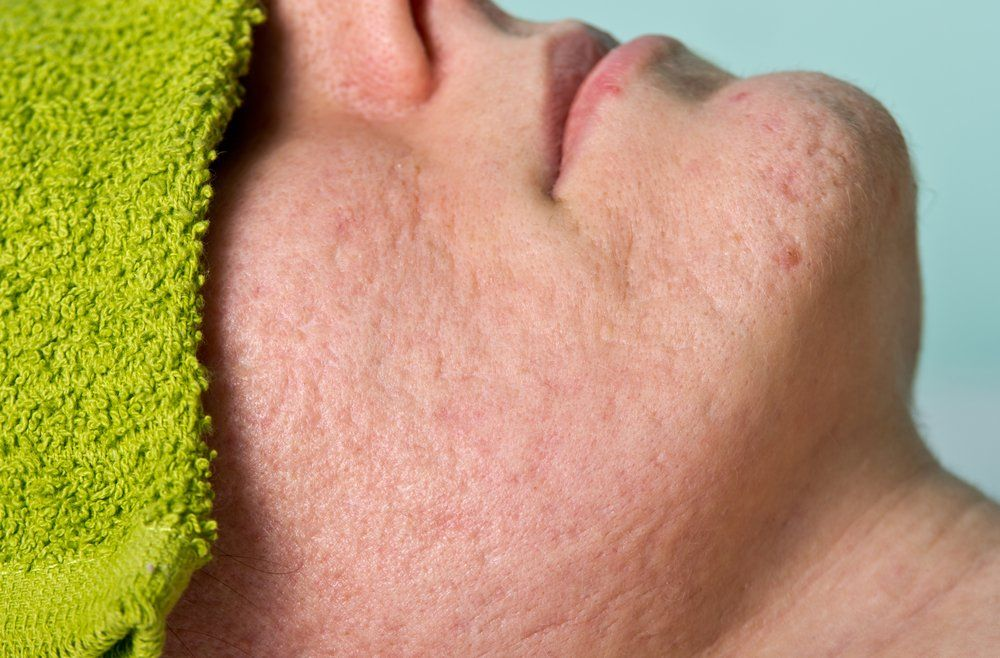 pitted acne scar treatment
