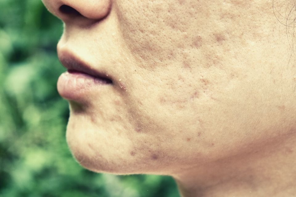 pitted acne scars